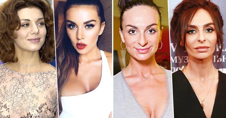 Из Буратино в Мальвину: российские звёзды-женщины после пластики носа