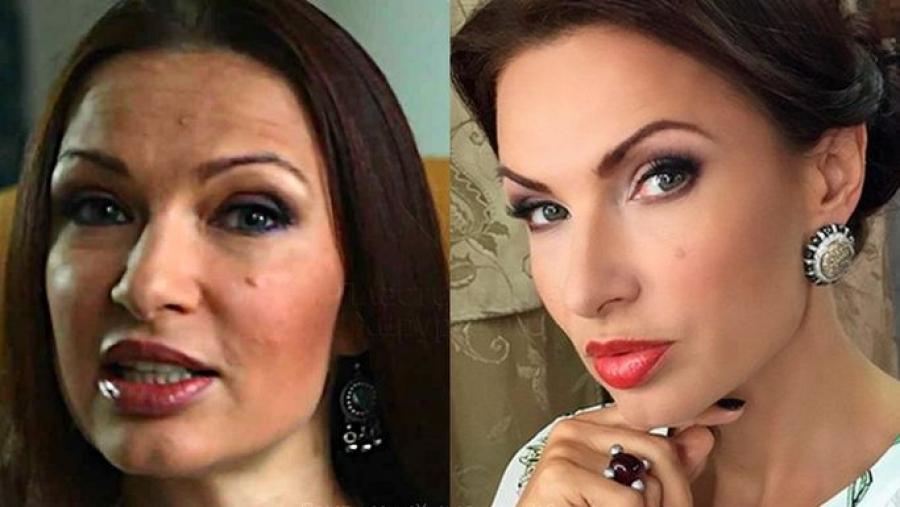 Эвелина бледанс фото до и после пластики фото новости о смерти актрисы папины дочки