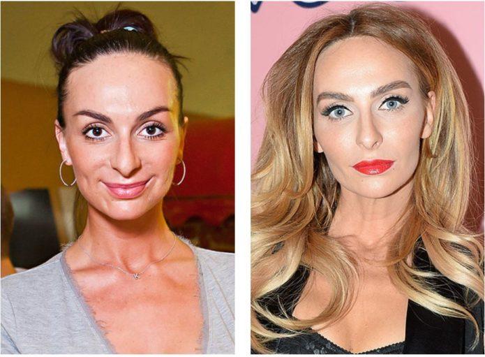 Екатерина Варнава до и после ринопластики