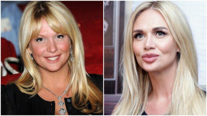 Виктория Лопырёва до и после ринопластики