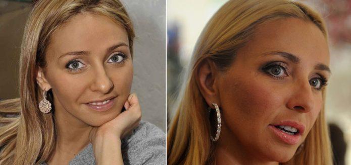 Татьяна Навка до и после ринопластики