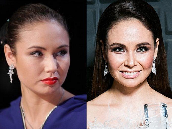 Ляйсан Утяшева до и после ринопластики