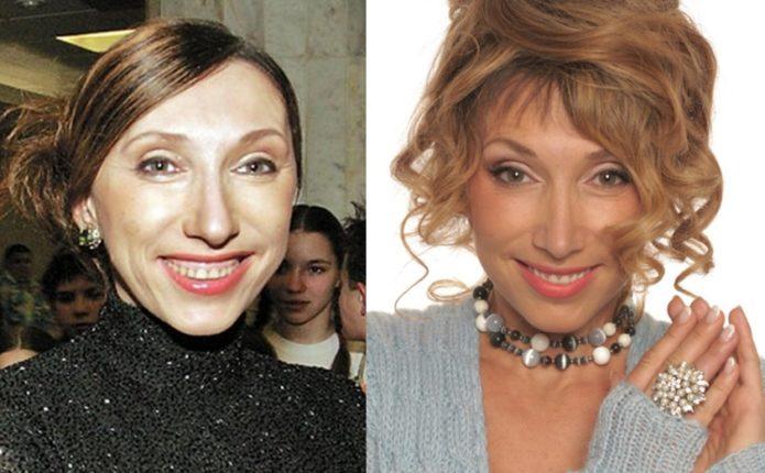 Елена Воробей до и после ринопластики
