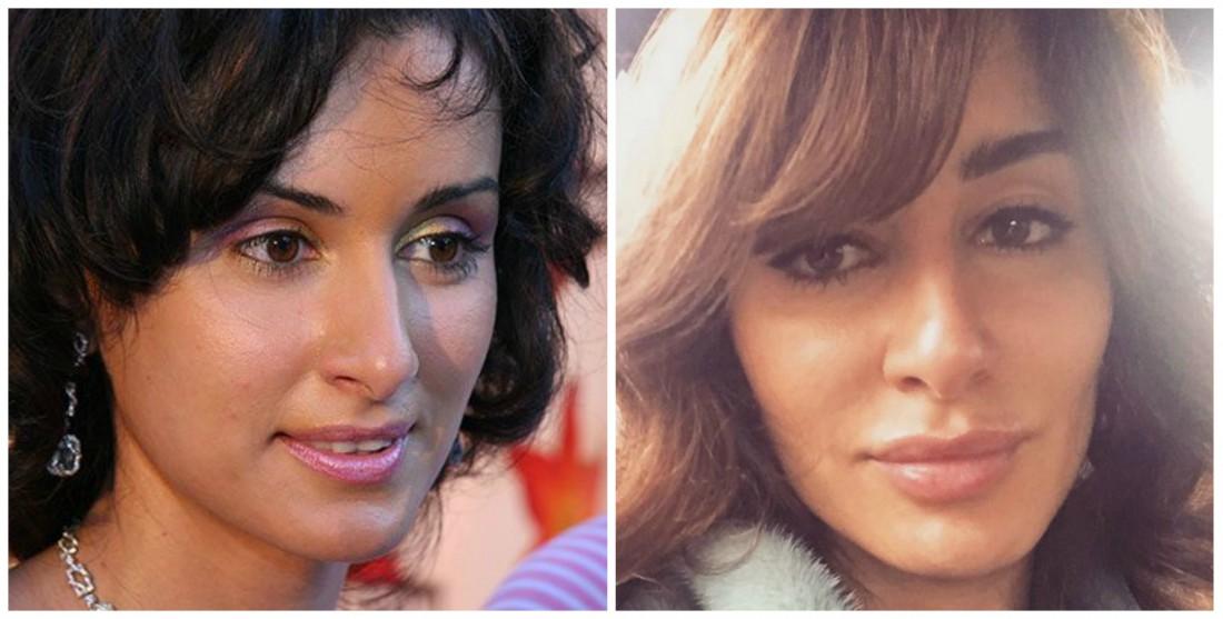 Зара до и после пластики фото