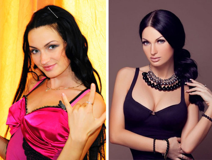 Евгения Феофилактова до и после пластики