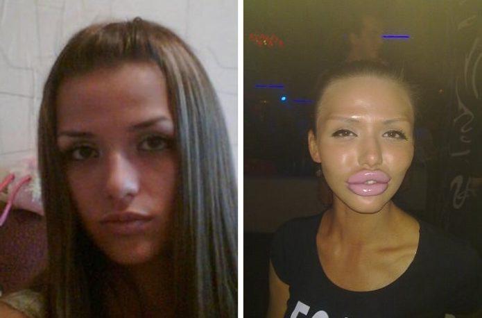 Светлана Давыдова до и после пластики