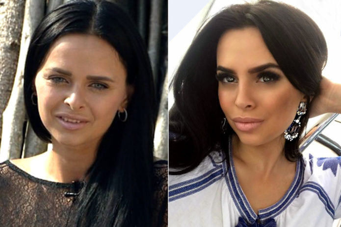 Виктория Романец до и после пластики