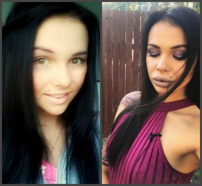 Александра Шева до и после пластики