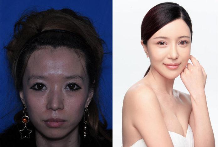 Чжан Шер до и после пластической операции