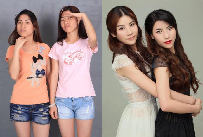 Китайские сёстры-близнецы до и после пластики