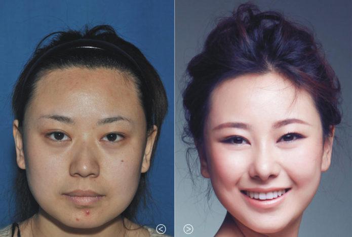 Ухань до и после серии пластических операций