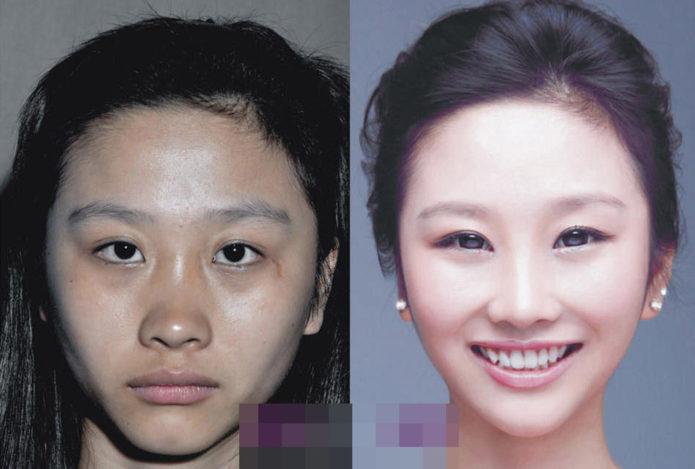 Вангчена Чэн до и после преображения