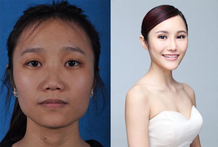 Ян Жави до и после вмешательства пластических хирургов