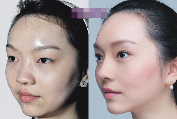 Лин Вэнь до и после пластики