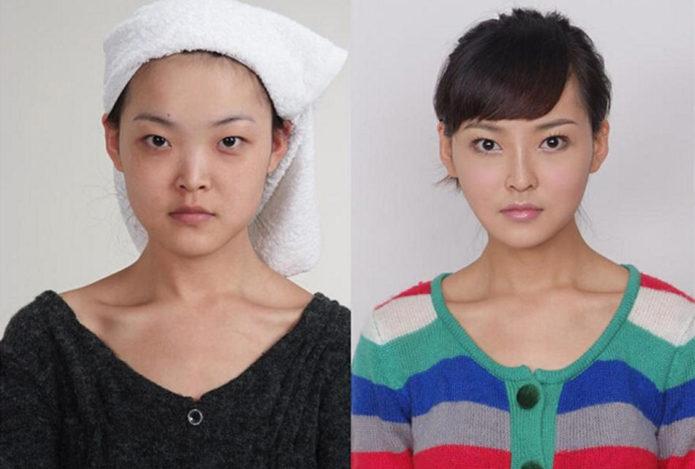Китаянка Ханчжоу до и после пластики