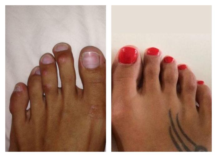 длинные пальцы ног