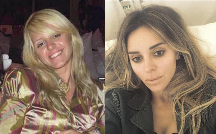 Анжелика Ревва до и после пластики
