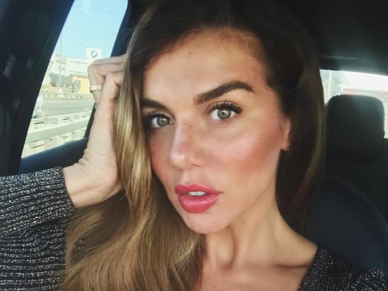 Анна Седокова страдает от странной кожной болезни