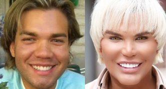 Родриго Алвес фото до и после