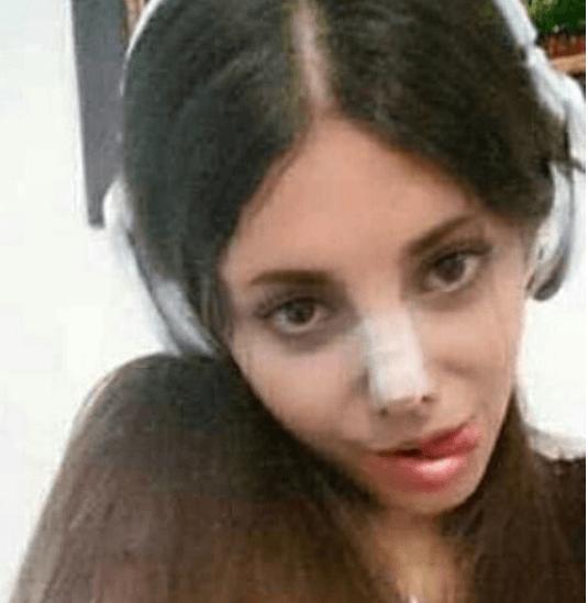 Сахар Табар, фото пластики носа