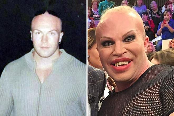 Саша Шпак до и после пластики