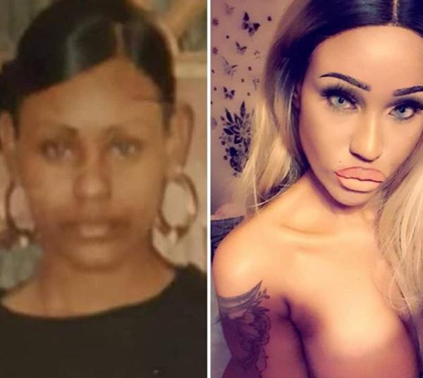 Синди Мур до и после пластики