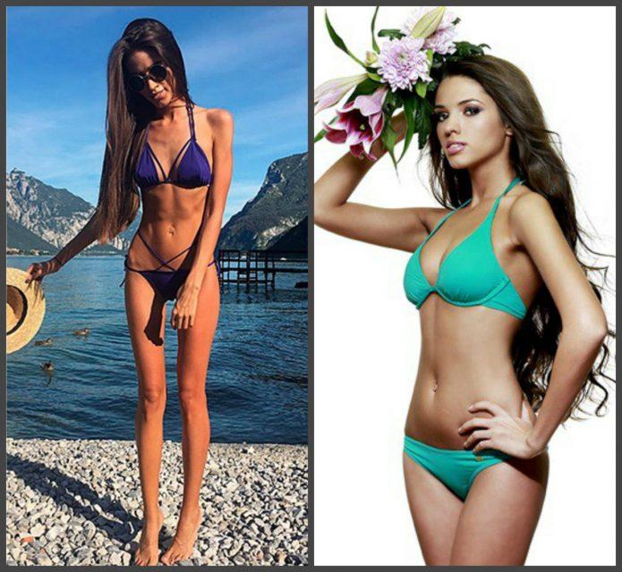 Виктория Короткова до и после анорексии