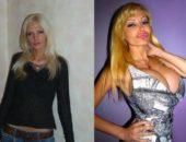 Виктория Вайлд до и после пластики