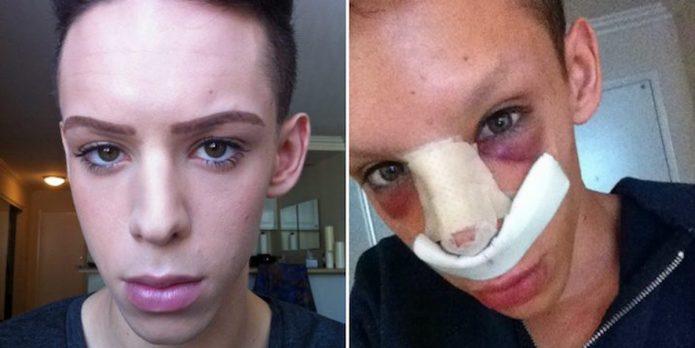 Винни Ох до и после пластики носа