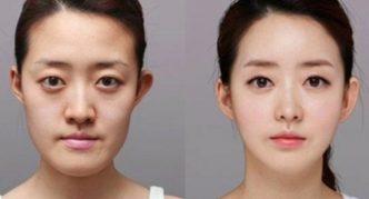 До и после операции сангапури