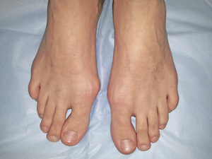 Удаление косточки на большом пальце ноги лазером цена отзывы описание