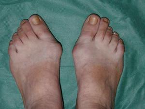Операция лазером по удалению косточки на ноге