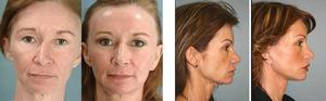 Фотоомоложение кожи лица: отзывы