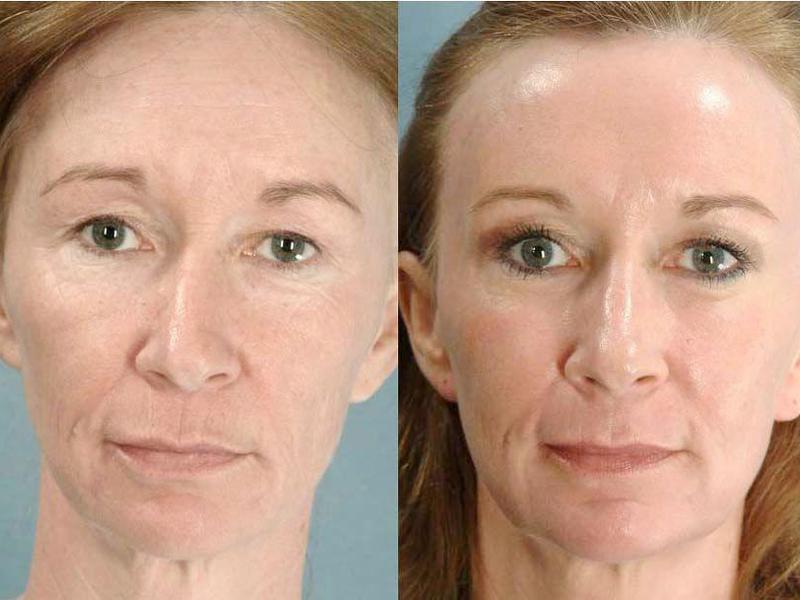 Фотоомоложение лица каким аппаратом делают безболезненная лазерная эпиляция саратов
