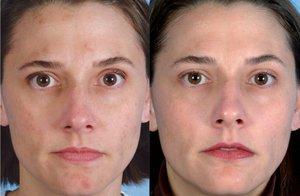 Ультразвуковая чистка лица: фото до и после