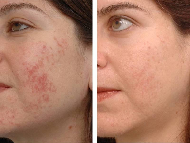 Чистка лица до и после отзывы