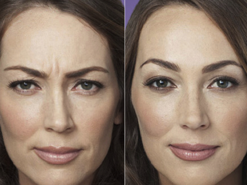 диспорт до и после фото