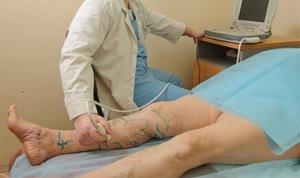 Операция по удалению варикоза вен на ногах