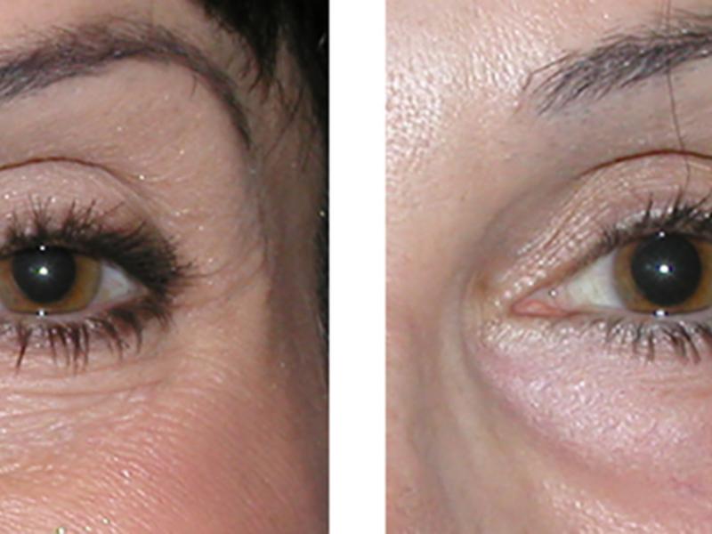 Инъекция ботокса под глазами