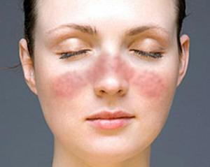 Возможные побочные эффекты от контурной пластики лица