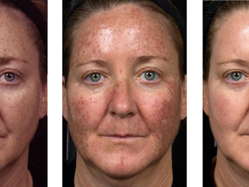 Лазерное неабляционное омоложение кожи лица