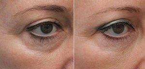Как действует мезотерапия на кожу лица