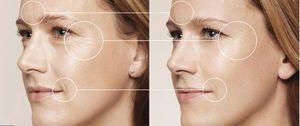 Как проводится контурная пластика лица