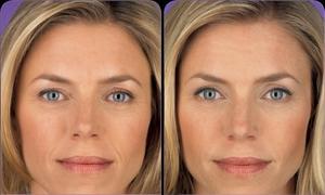 Лицо женщины до и после контурной пластики