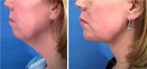 Фото до и после озонотерапии лица
