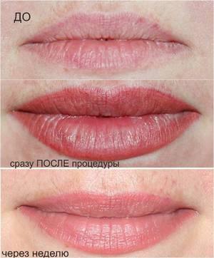 Сексуальные губы после перманентного макияжа