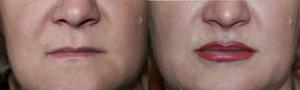 Сколько держится татуаж губ