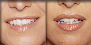 Какой выбрать цвет для татуажа губ