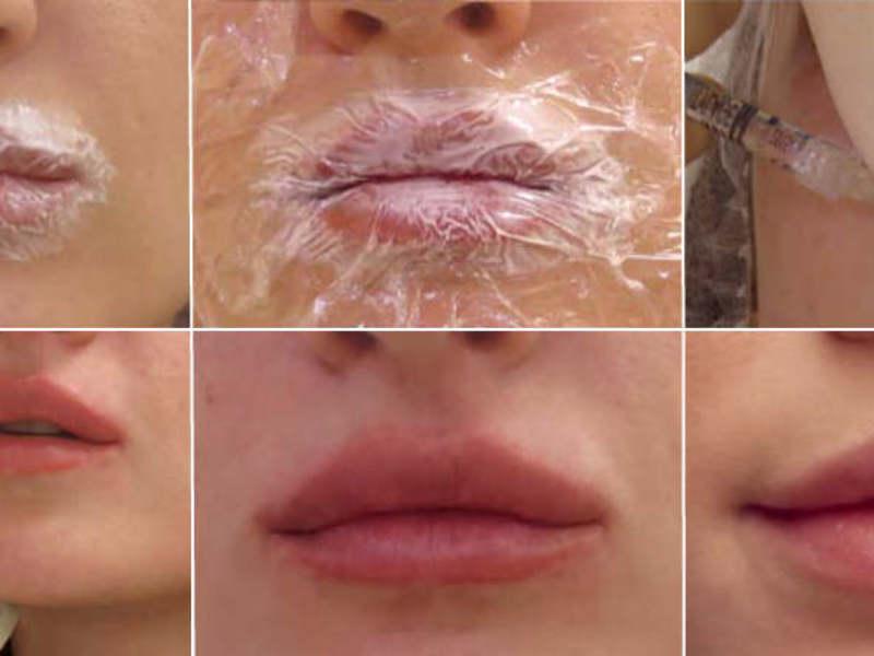 Гиалуроновая кислота в губы после процедуры ухода
