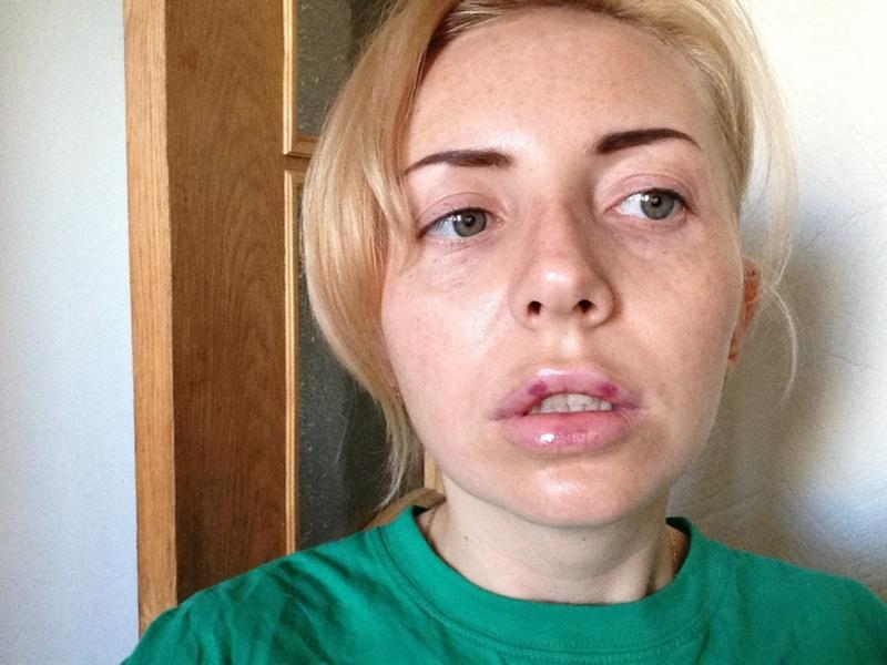 Перечень возможных побочных эффектов от процедуры увеличения объёма губ